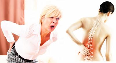 Pengobatan Herbal Osteoporosis Aman Tanpa Efek Samping