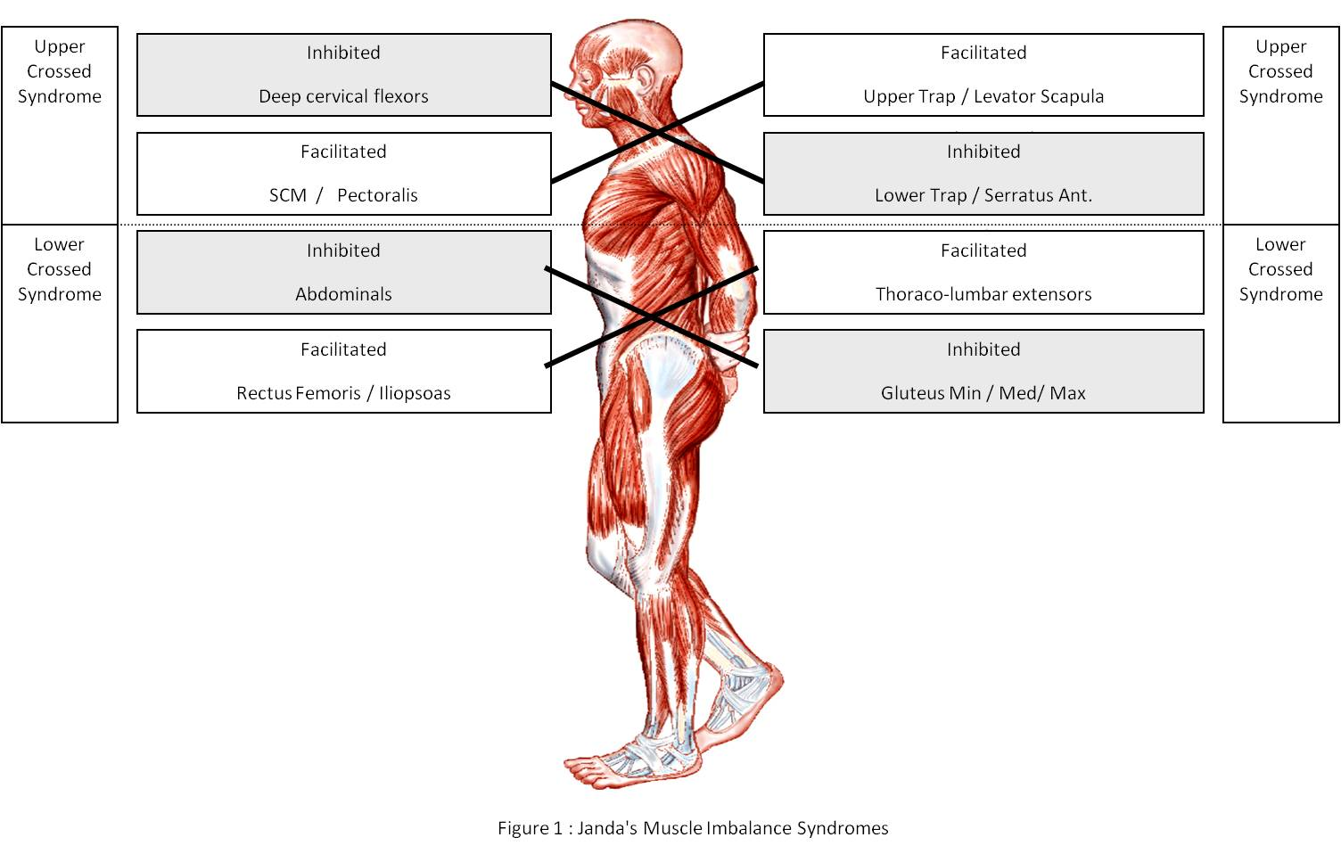Poor Posture and Upper and Lower Crossed Syndromes