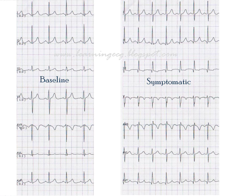 Ecg Rhythms Pulmonary Embolism On Telemetry