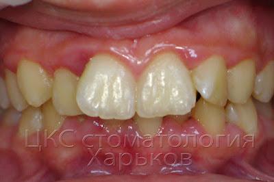 У пациента неровные зубы и гингивит