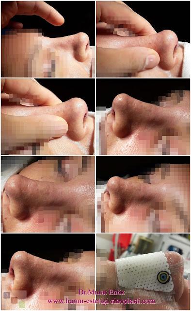 Burun estetiği - Rinoplasti - Burun estetiği öncesi ve sonrası görüntüleri - Dr.Murat Enöz burun estetiği fotoğrafları - Estetik burun ameliyatı - Burun estetiği ameliyatı tanımı - Burun estetiği nasıl yapılır? - Burun estetiği nedir? - Burun estetiği teknikleri - Burun estetiği fiyatı 2019 - Burun estetiği sonrası - Burun estetiği İstanbul - Burun estetiği ameliyatı öncesi kullanılması sakıncalı ilaçlar ve diğer ürünler