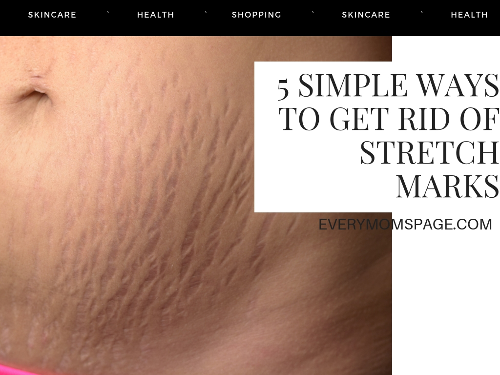 Everymom Spage 5 Simple Ways To Get Rid Of Stretch Marks