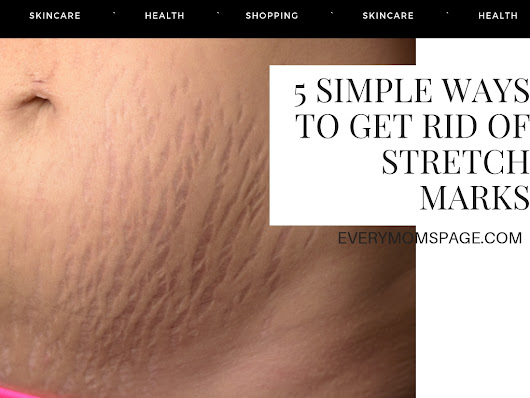EveryMom'sPage: 5 Simple Ways to Get Rid of Stretch Marks