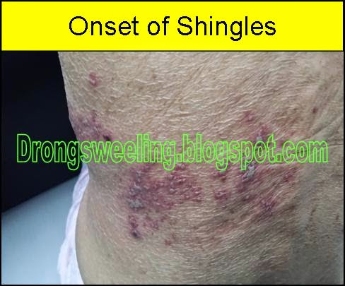 Tcm News How Tcm Chinese Doctor Cured Shingles 生蛇