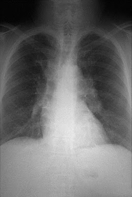 Mesothelioma Information and Facts, Symptoms and Diagnosis