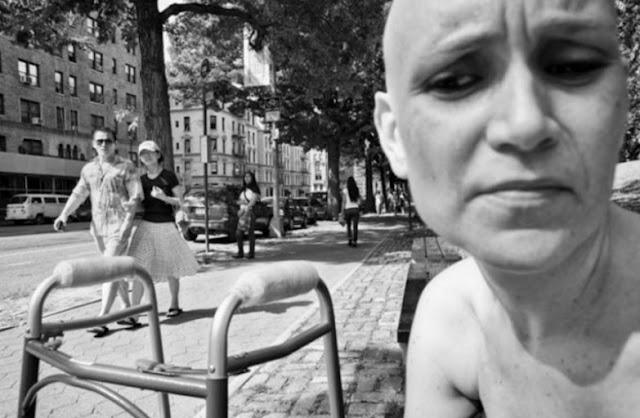 foto seorang penderita kanker stadium lanjut -6
