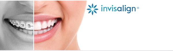 Salud-Ortodoncia-estética-brackets