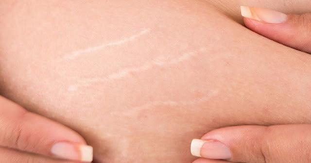 طرق إزالة الخطوط البيضاء من الجسم نتيجة السمنة