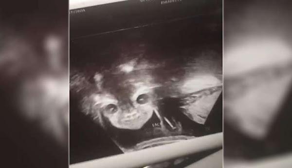 Ο σπόρος του διαβόλου:Μια έγκυος γυναίκα  σοκαρίστηκε  όταν είδε  πρόσωπο δαίμονα στο υπερηχογράφημα