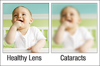 Healthy Lens & Lens With Cataracts