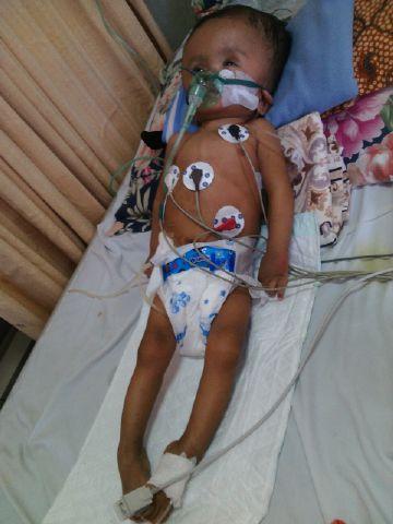 Mari Membantu Farid Asyaraf Umur 15 Bulan yang sudah Menjalani 8 kali Operasi