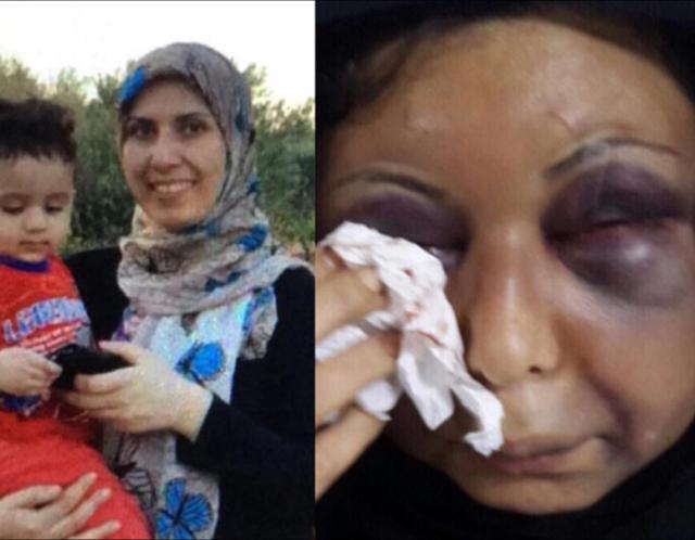 امرأة سورية تتعرض للعنف على يد زوجها
