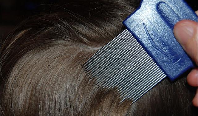 kutu rambut, menghilangkan kutu rambut, bahaya kutu rambut bagi kesehatan, cara menghilangkan tuma (kutu rambut), cara menghilangkan ketombe yang bandel