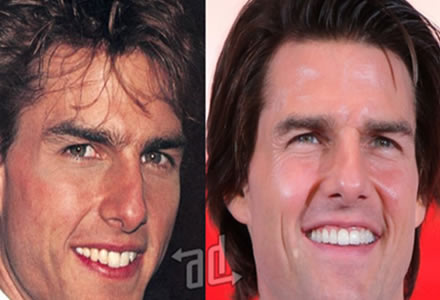 antes y despues de la cirugia dientes de tom Cruise