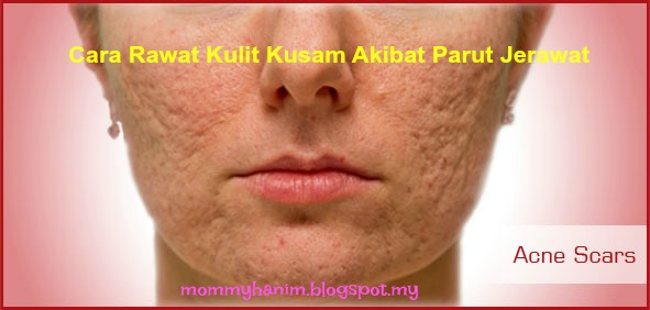 cara rawat kulit kusam akibat parut jerawat dalam masa 10 hari