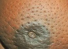 الكشف الذاتي عن اورام الثدي!! الكشف عن اورام الثدي في المنزل