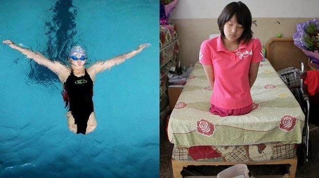 Atlet Penyandang Cacat Paling Memukau Mata Dunia