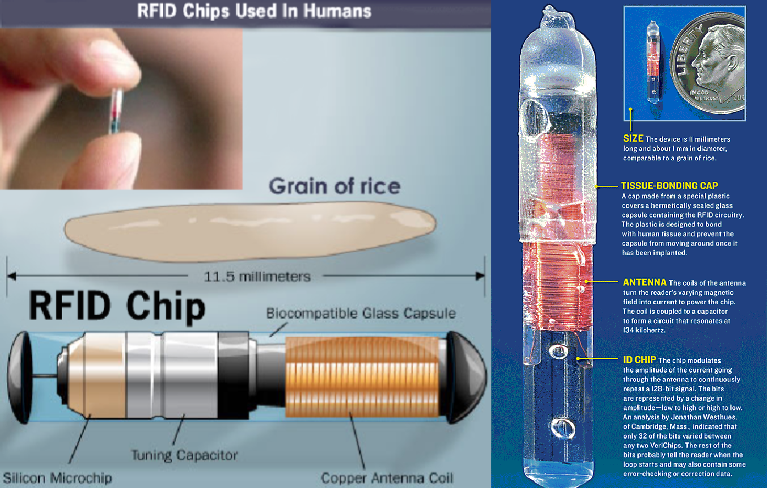 Microchip implant (human)