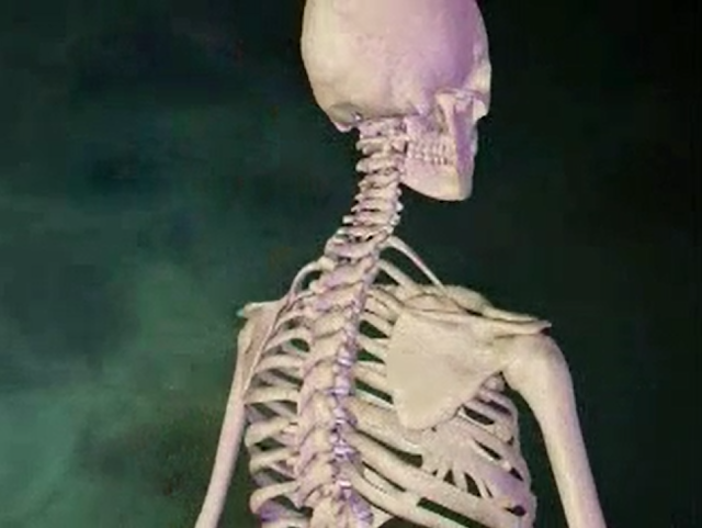 Back pain and neck ache animation