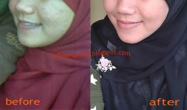 Arfinny S World Dewi Penuntas Jerawat Viva Milk Cleanser Face Tonic Bengkuang