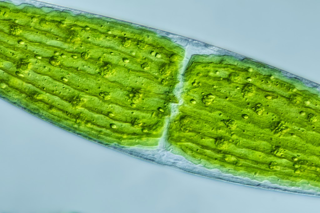 Microscopy image of closterium