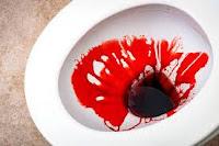 Tips Menyembuhkan Anus Keluar Darah Dengan Obat Alami