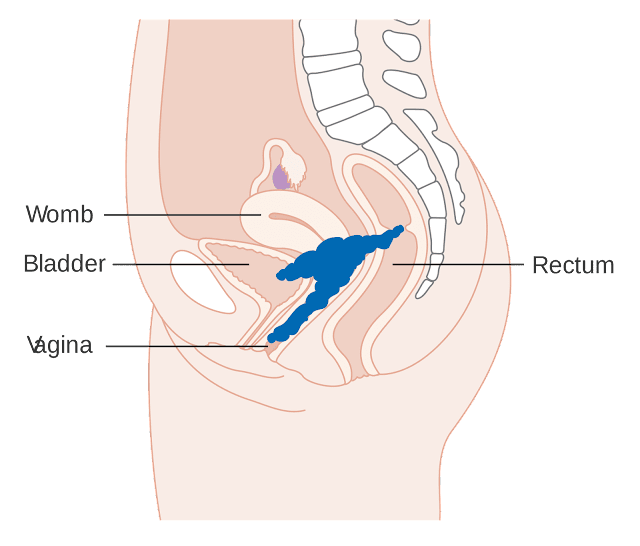 cervical-cancer-early-symptoms