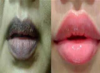 Tips Alami Mengembalikan Warna Bibir Lebih Indah !