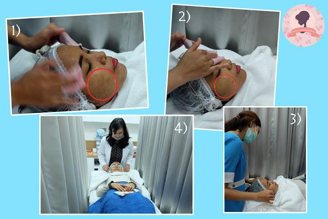 Proses-pembersihan-wajah-pra-treatment-PPP-laser