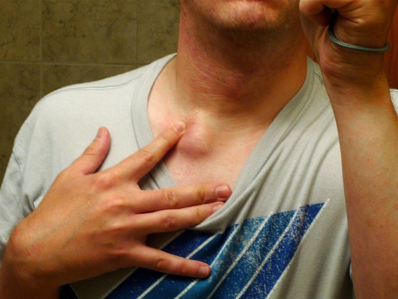 Sintomas de amigdalitis yahoo dating 1
