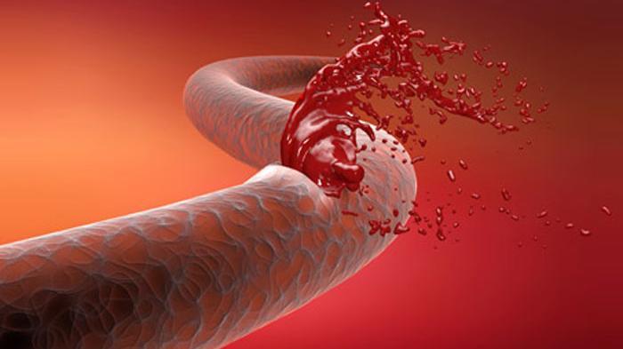 Jenis-Jenis Penyakit Hemofilia (Susah Membeku Darah) dan Cara Mengobatinya