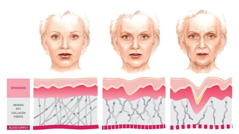Collagen dưới góc nhìn của bác sĩ da liễu