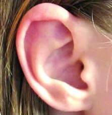 3 أسباب لاحمرار الأذن في فصل الشتاء