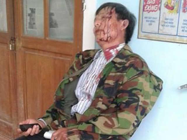 Việt Nam sắp điều trần trước Uỷ ban Chống tra tấn của LHQ