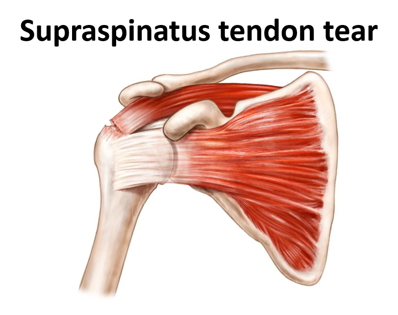 Supraspinatus Tendon Tear Davidbrowns