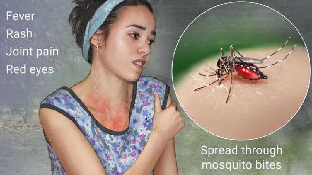mengenal virus Zika dan penyembuhannya