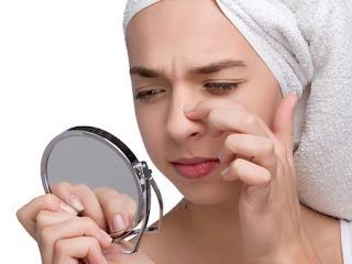 Komedo Di Hidung, Dagu, Dan Wajah, Ini Cara Menghilangkannya