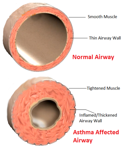 asthma induced narrowing of nasal passages