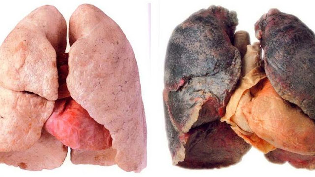 5 Foods For Healthy Lungs