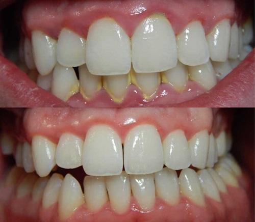 harga cuci gigi klinik kerajaan, harga putihkan gigi di klinik kerajaan, karang gigi, bleaching gigi, cara membersihkan karang gigi