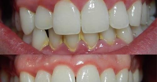 Harga Cuci Gigi Klinik Kerajaan