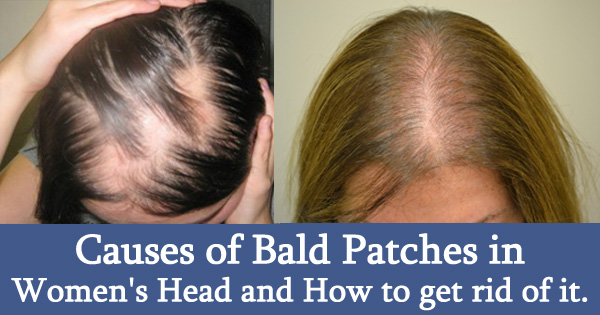 Causes of Bald Patches in Women's Head and How to Get Rid of It.