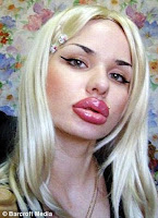 Woman desperate to look like Jessica Rabbit gets world's biggest lips after 100 injections (and she's not stopping there) 1