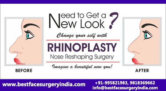 Rhinoplasty Cost in India | Nose Plastic Surgery