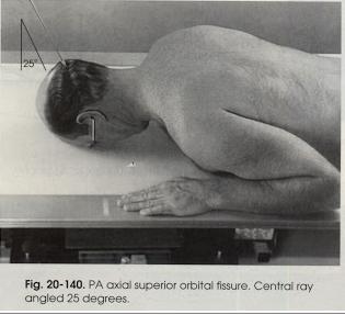Teknik Radiografi Fisura Orbitalis