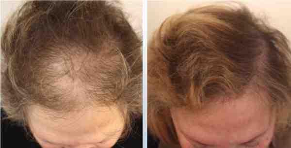 لانبات الشعر في اماكن الصلع