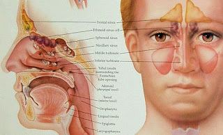 Home Remedies for Sinus problem in HINDI/URDU.