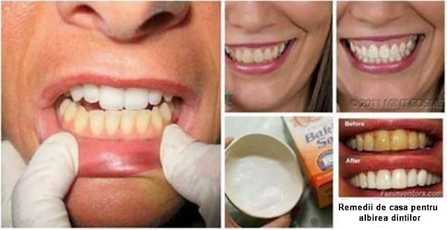 remediu pentru tratarea dintilor galbeni