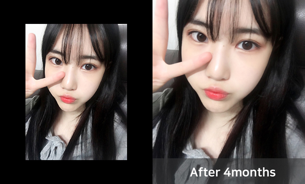 짱이뻐! - Surprised by Korea Rhinoplasty And More Satisfied By Envy And Jealousy From My Friends