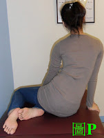 脊椎側彎, 脊椎側彎惡化, 脊椎側彎姿勢, 駝背